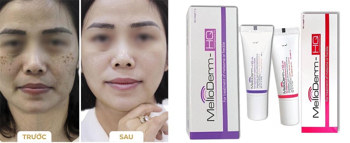 cham-soc-mat-thuoc-tri-nam-tan-nhang-doi-moi-melloderm-thai-lan-23991